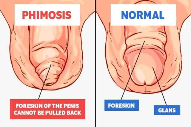 crapaturi penis