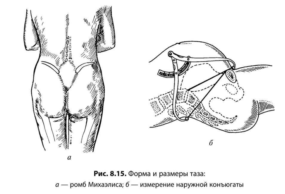 ghemuituri și erecții