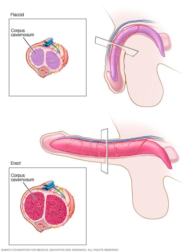 penisuri erecte