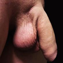 penis fără testicule