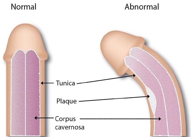 curbura penisului și disfuncția erectilă