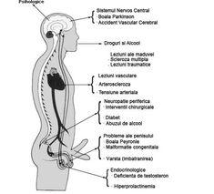 metode de tratare a erecției slabe)