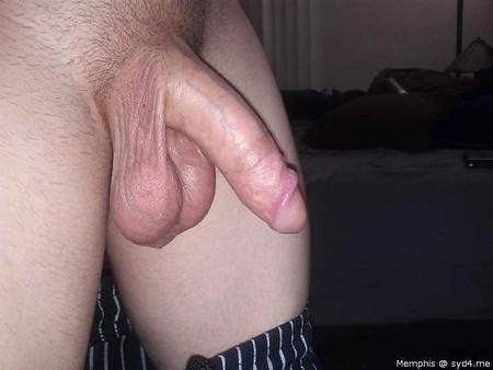 Micsorarea penisului: cele mai frecvente cauze