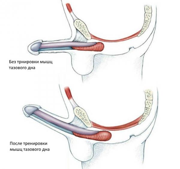 înseamnă refacerea membranei mucoase a penisului