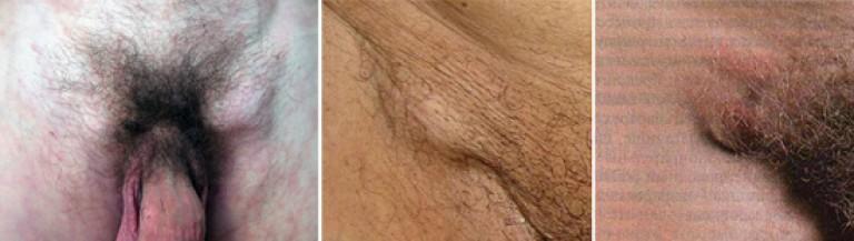 limfangită pe penis pancreas și erecție