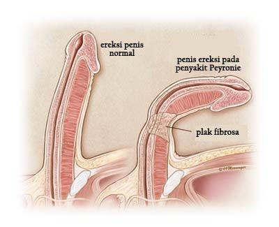 penis după antrenament ce legume îmbunătățesc erecția