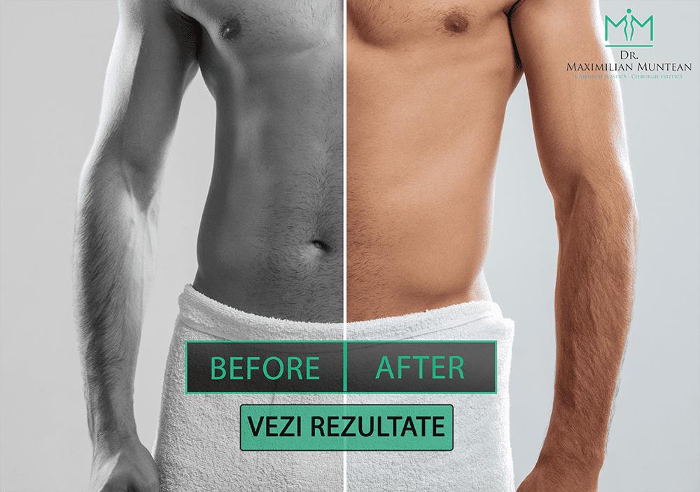 chirurgie de mărire a penisului înainte după