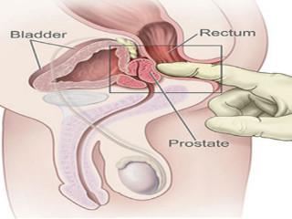 care este efectul prostatei asupra erecției
