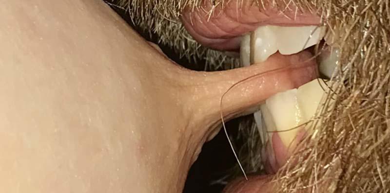 penis moale când este excitat dimensiunile penisului masculin după rasă