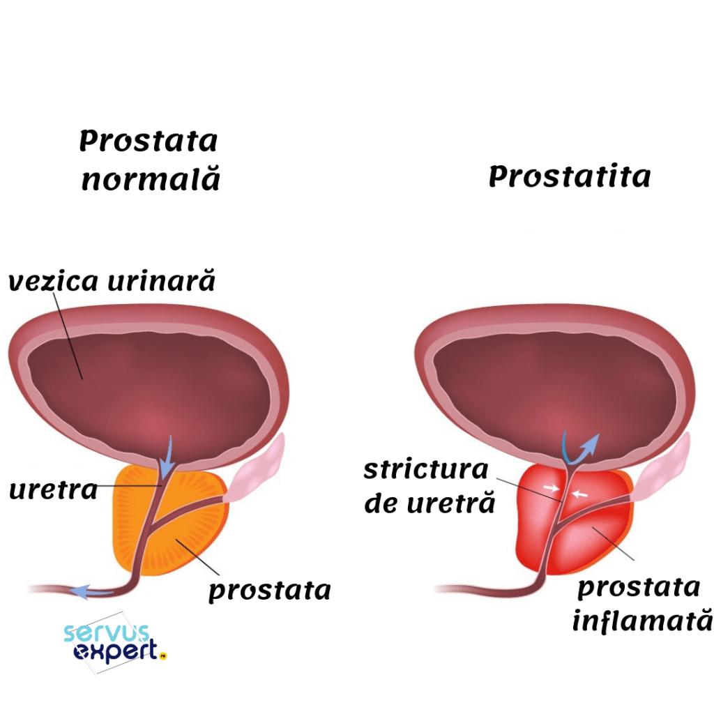 prostatita cronică agravând erecția)