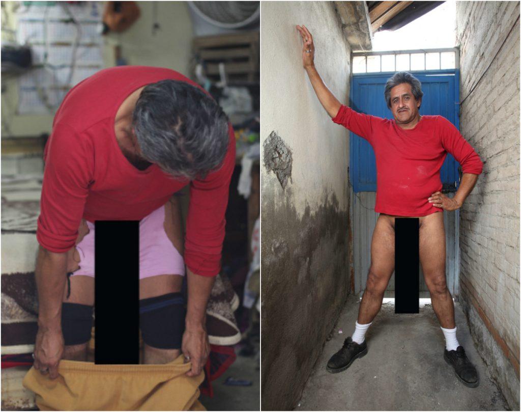 Cum arată bărbatul cu cel mai lung penis din lume - CSID: Ce se întâmplă Doctore?