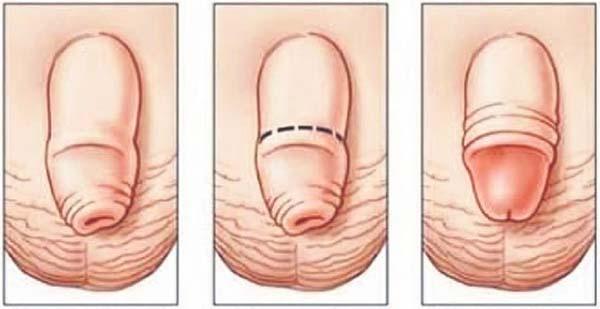 la ce vârstă crește penisul?