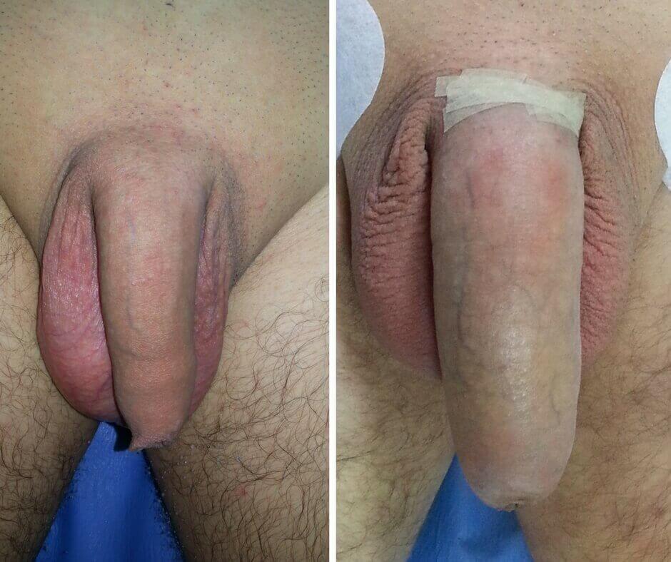 penisuri mici în stare de erecție