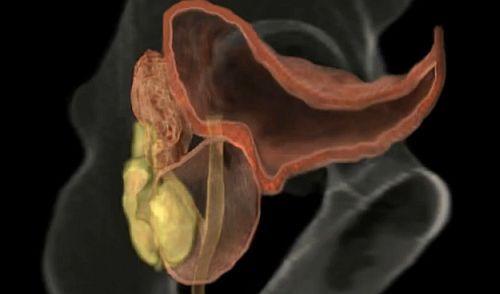 pierderea erecției în prostată și cum să fii)