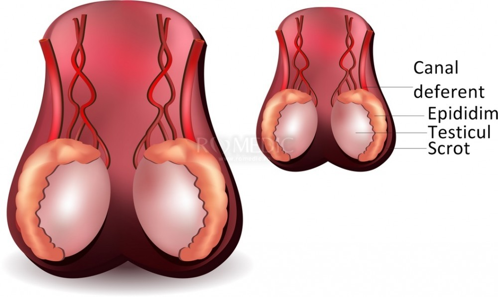cu o erecție, testiculele dispar