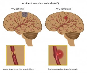 erecție după un accident vascular cerebral