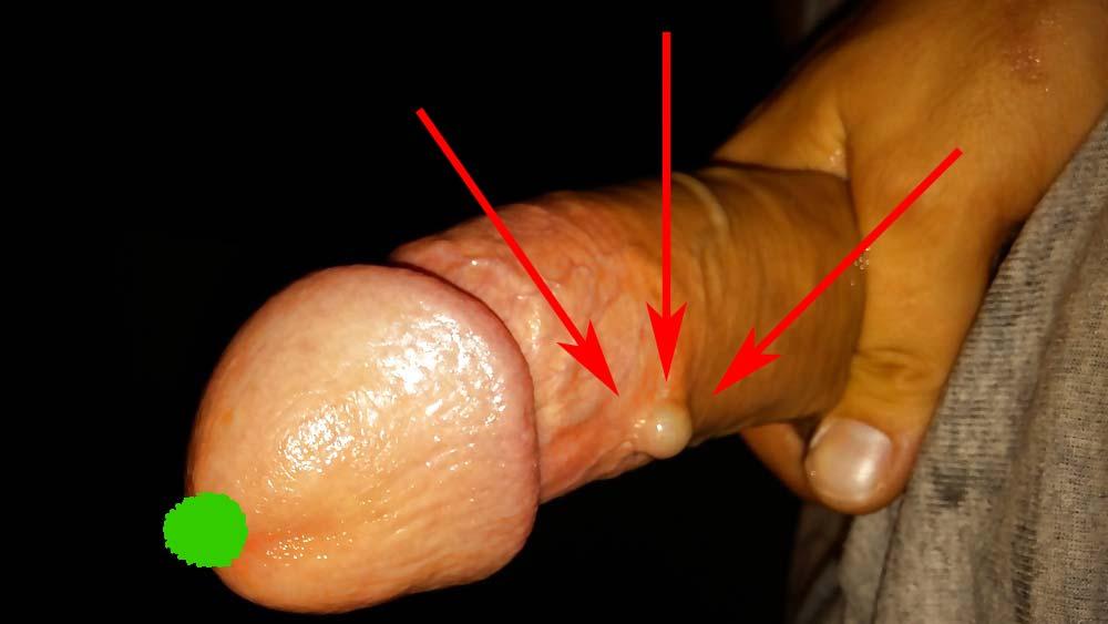 de ce pun inele pe penis