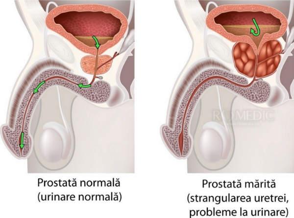 prostatită și erecție slabă)