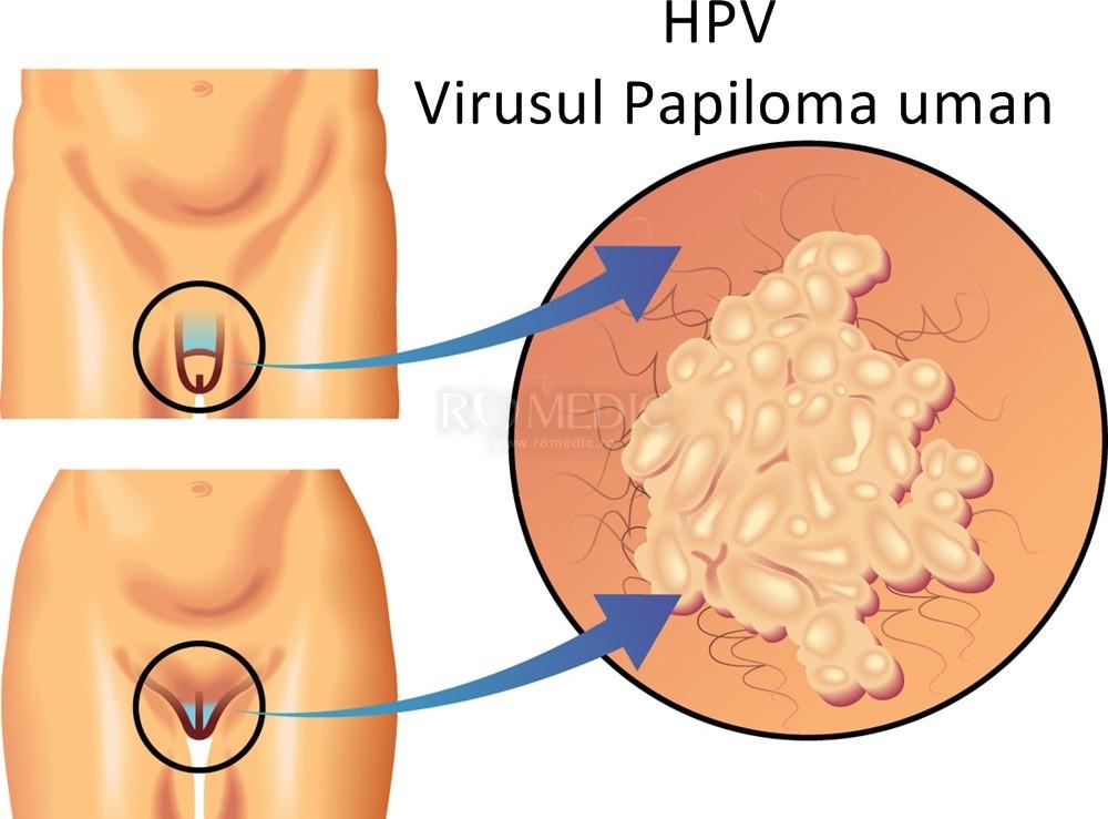 S-ar putea să ai o boală cu transmitere sexuală chiar dacă nu urinezi foc