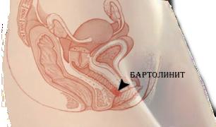 Un abces pe penis: un fenomen care trebuie abordat urgent! - Înfrumusețare
