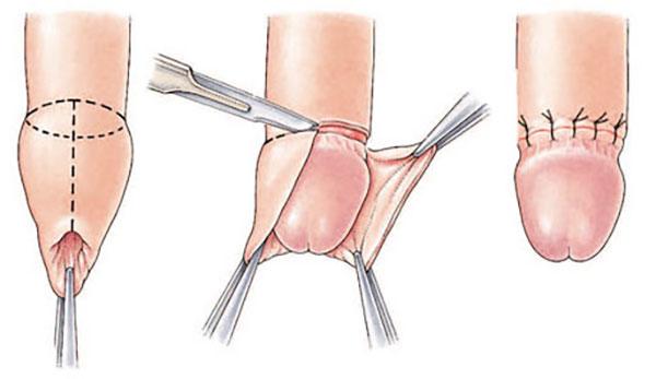 Circumcizia – adevarurile pe care trebuie sa le stiti –