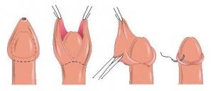 erecție după circumcizie