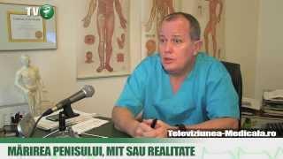 Usturoiul, Viagra naturala - CSID: Ce se întâmplă Doctore?