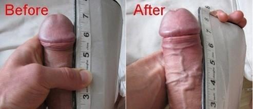 după operație penis)