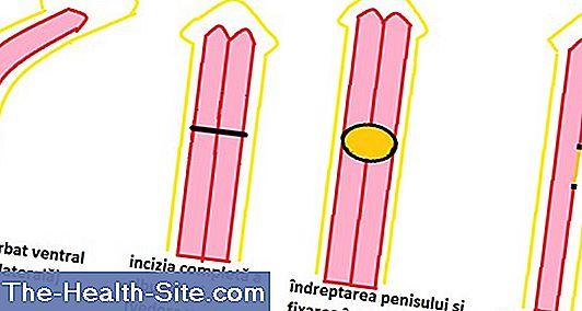 circumferința penisului este normală)