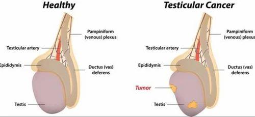 Hipoplazia penisului