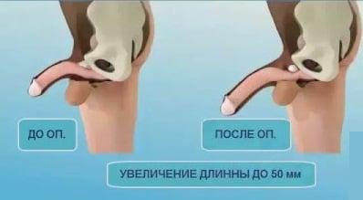 măsurați corect penisul într- o stare de erecție