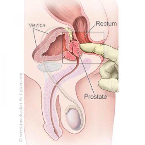 prostatită și erecții nocturne