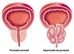 Potență și prostată | bogdanbarabas.ro