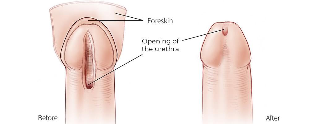 Testosteronul