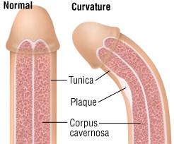 tratează curbura penisului
