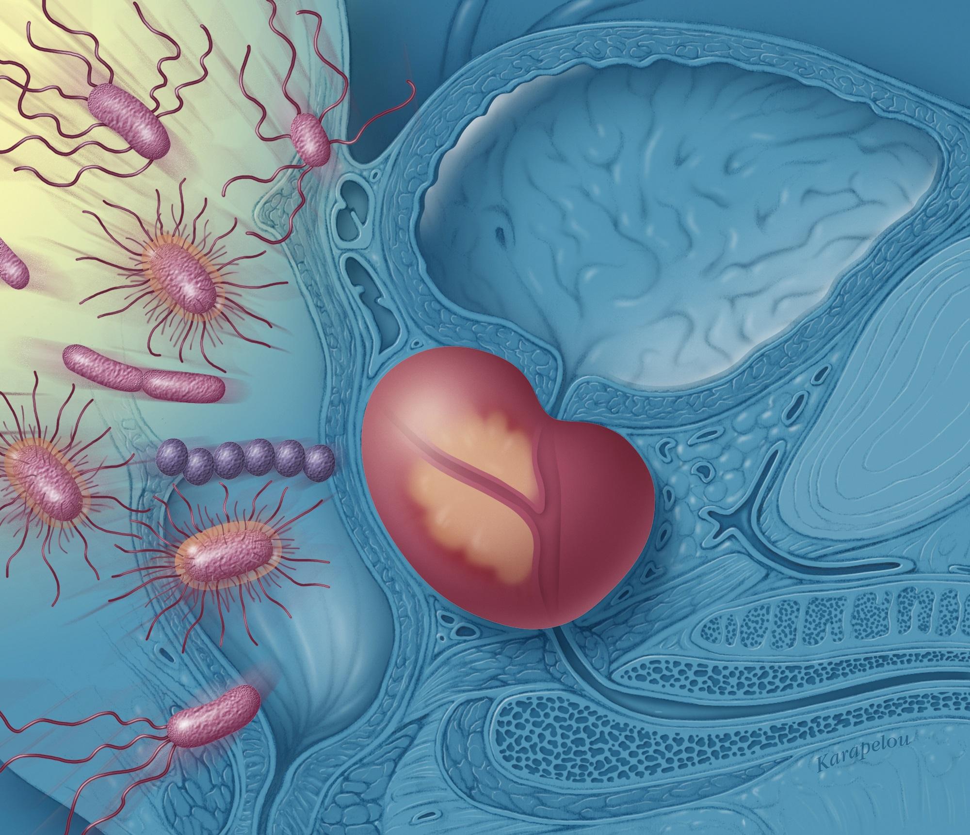 prostatilen din erecție