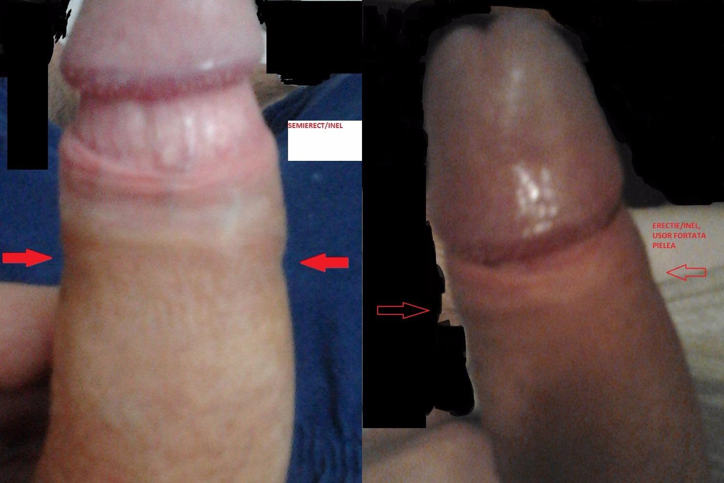 penis flască fără erecție)