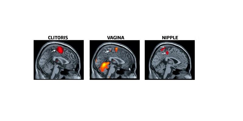erecția mamelonului feminin)