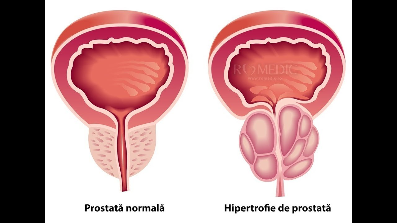 prostatita poate afecta erecția
